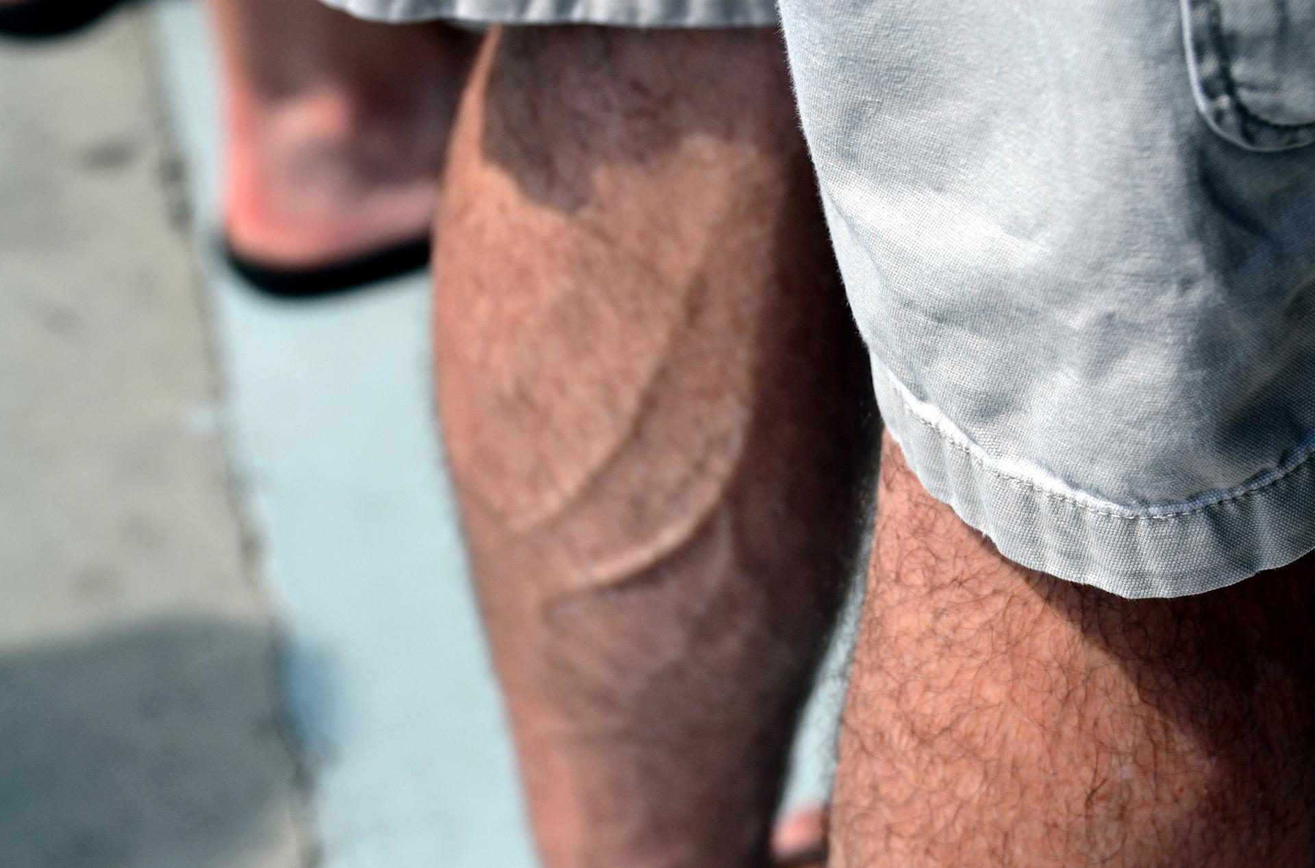 Резь между ногами, Болит сустав между ногой и пахом 8 фотография